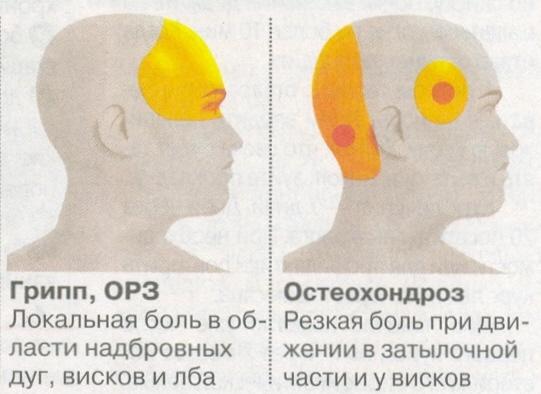 Домашнее лечение головной боли