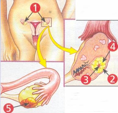 Киста яичников и ее предупреждение